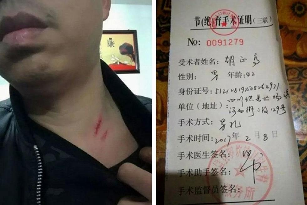 42歲男子胡正高早前回雲南老家過年時,被當地計生部門帶走並強行做了結紮手術,過程中更被打傷,事件引起社會譁然。
