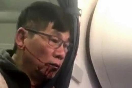 華裔醫生被弄至臉部披血。